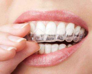 Allineatore dentale