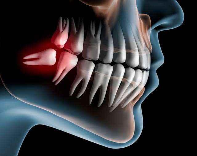 chirurgia-orale-dentista-lucca