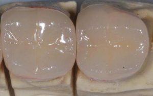 corona dentale singola