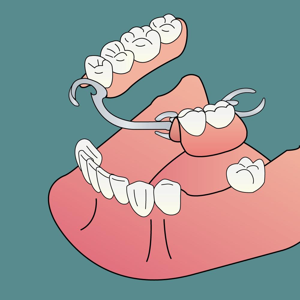Protesi dentale scheletrata
