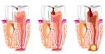 devitalizzazione dente