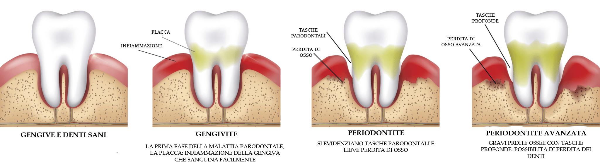 parodontite dentale