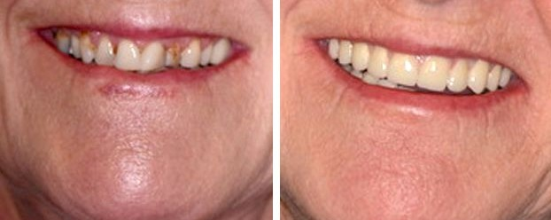ricostruzione dentale estetica