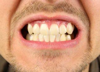 stringere i denti