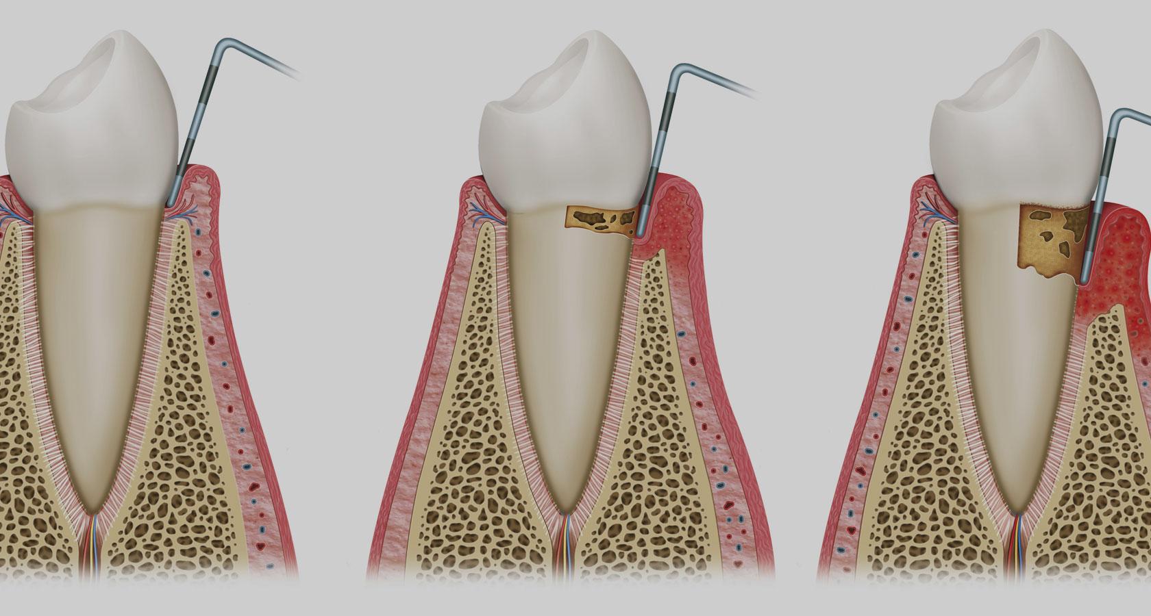 visita parodontale