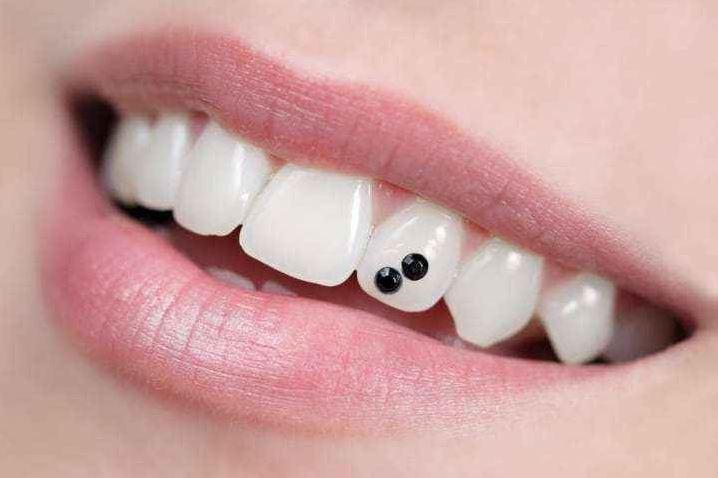 Brillantino al dente