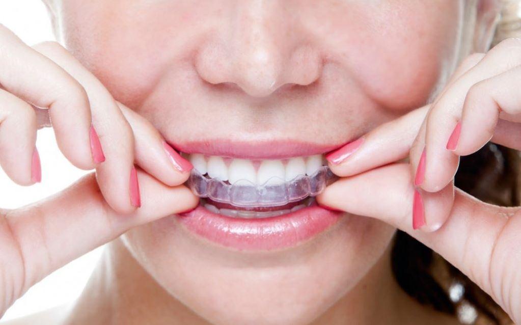 bite dentale notturno
