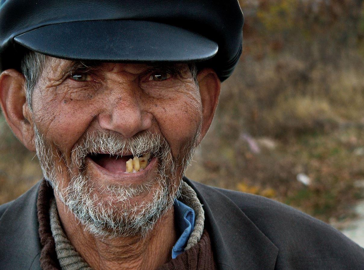 la mancanza dei denti