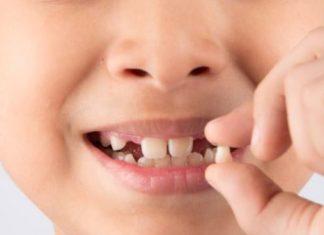 Denti di latte e permanenti