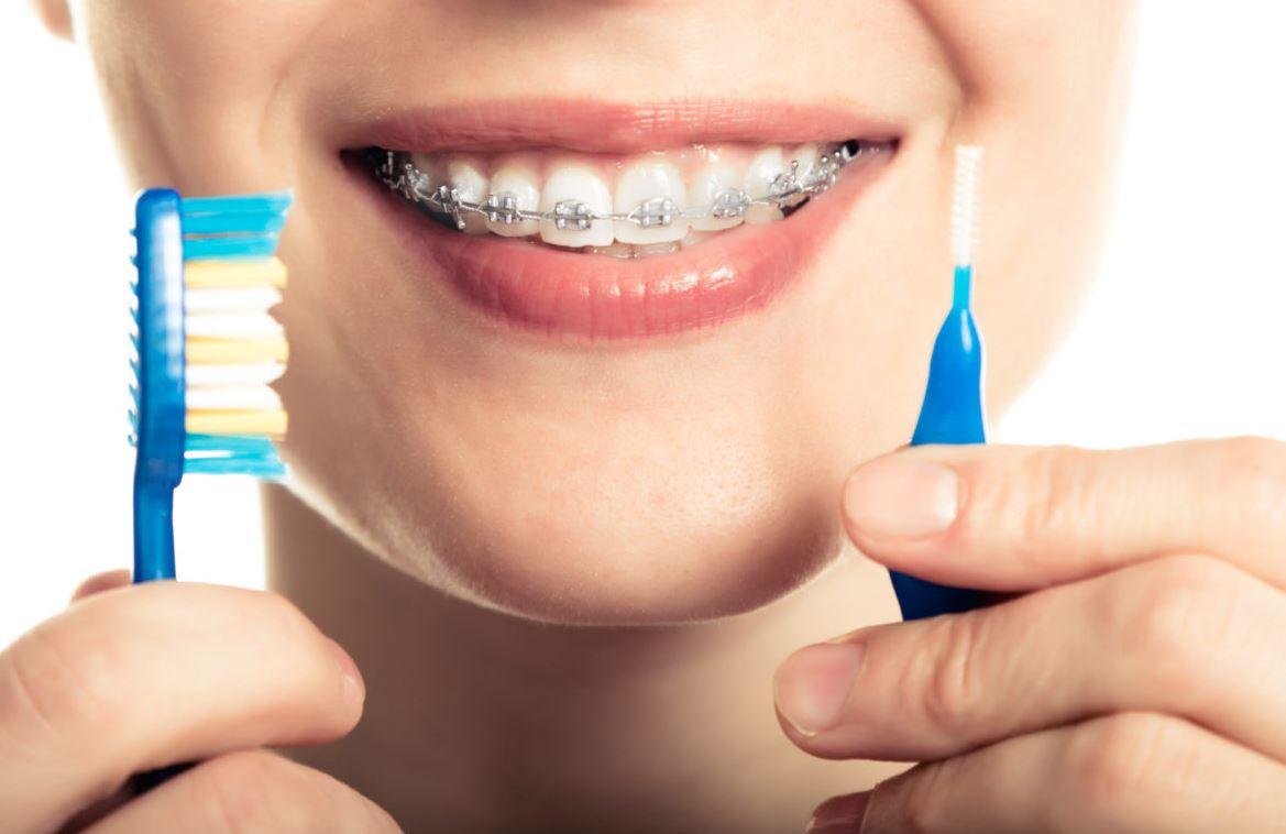 Ortodonzia igiene orale