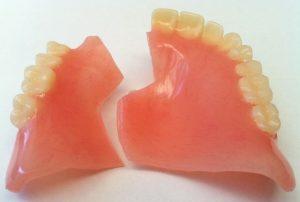 dentiera rotta